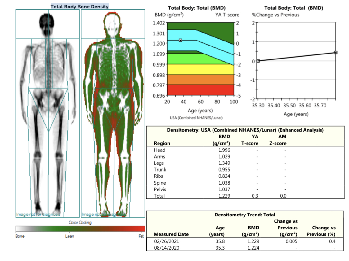 Body composition with dexascan